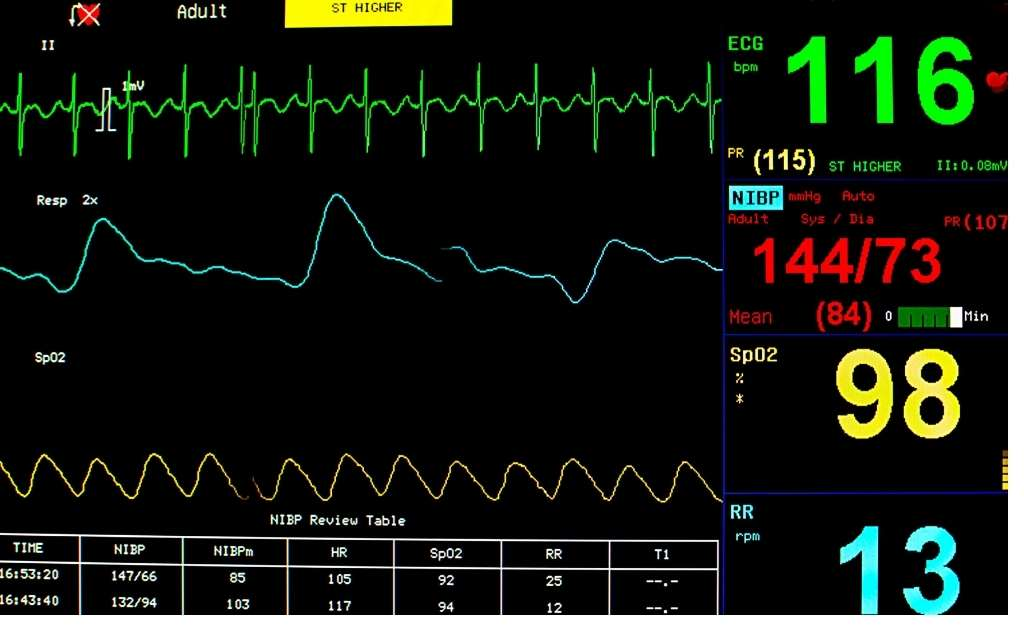 Careplex Vitals app Download for Android